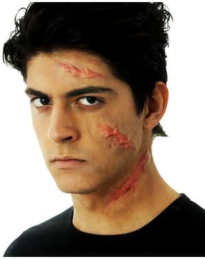Prótesis de látex cicatrices abultadas