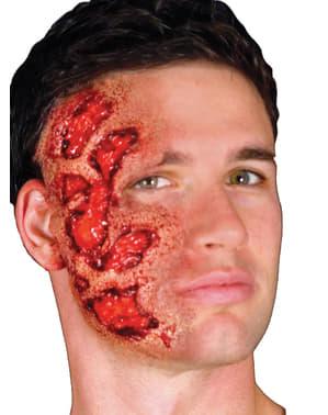 Prótese em látex queimadura infetada