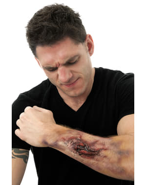 Prótesis de látex brazo fractura interna