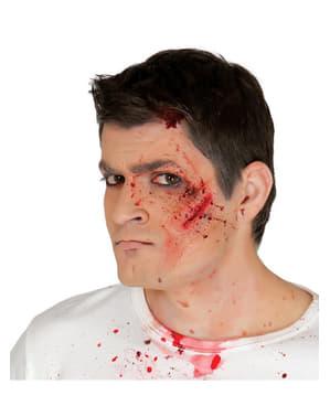 Cicatrice visage bagarre