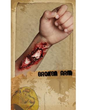Fausse plaie bras cassé