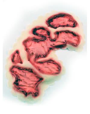 Prótesis de látex quemadura